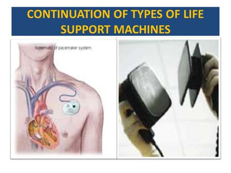 CONTINUATION OF TYPES OF LIFE SUPPORT MACHINES. HEART/LUNG BY PASS CARDIOPULMONARY BY PASS(CPB) IS A TECHNIQUE THAT TEMPORARILY TAKES OVER THE FUNCTION.