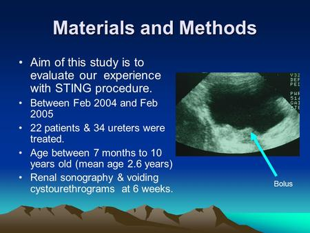 Materials and Methods Aim of this study is to evaluate our experience with STING procedure. Between Feb 2004 and Feb 2005 22 patients & 34 ureters were.