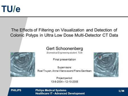 TU/e PHILIPSPhilips Medical Systems Healthcare IT - Advanced Development 1/38 The Effects of Filtering on Visualization and Detection of Colonic Polyps.