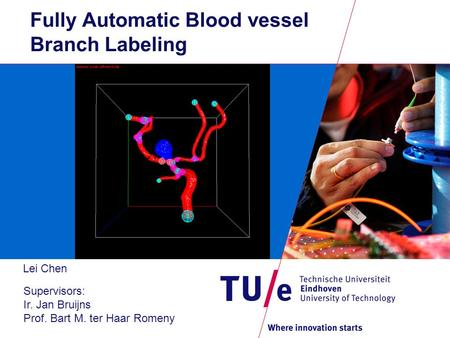 Fully Automatic Blood vessel Branch Labeling Lei Chen Supervisors: Ir. Jan Bruijns Prof. Bart M. ter Haar Romeny.