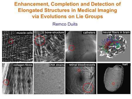 Enhancement, Completion and Detection of Elongated Structures in Medical Imaging via Evolutions on Lie Groups muscle cells bone-structure retinal bloodvessels.