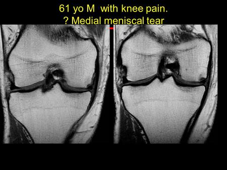 61 yo M with knee pain. ? Medial meniscal tear.