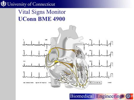 Vital Signs Monitor UConn BME 4900 Vital Signs Monitor Purpose As the population ages, many people are required by their doctors to take vital signs.
