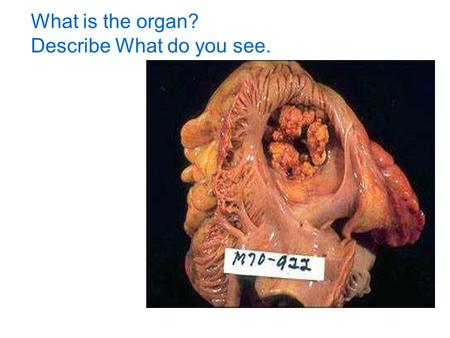 What is the organ? Describe What do you see.. Gross Heart, view of the tricuspid valve from the right atrium The valve are obscured by the presence of.