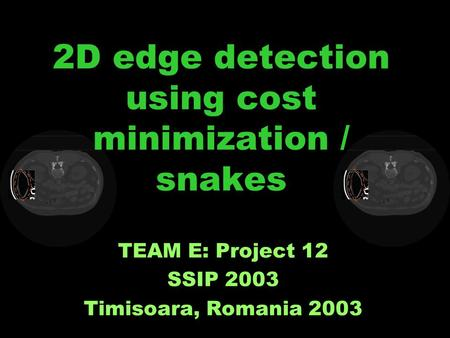 2D edge detection using cost minimization / snakes TEAM E: Project 12 SSIP 2003 Timisoara, Romania 2003.