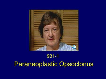Paraneoplastic Opsoclonus 931-1. History In July 1986 a 58-year old woman presented acutely with nausea, vertigo, difficulty focusing and oscillopsia.