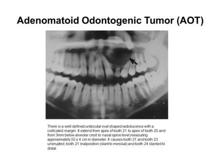 Adenomatoid Odontogenic Tumor Gross X-ray finding: There i...