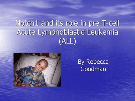 Notch1 and its role in pre T-cell Acute Lymphoblastic Leukemia (ALL) By Rebecca Goodman.