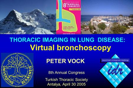 PETER VOCK 8th Annual Congress Turkish Thoracic Society Antalya, April 30 2005 Virtual bronchoscopy THORACIC IMAGING IN LUNG DISEASE: