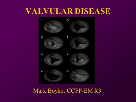 VALVULAR DISEASE Mark Boyko, CCFP-EM R3. One night at the Foot… 64yo male found down at home… -HR 111 -BP 109/67 -RR 12 -Temp 38.6 -O2 88% -Glucose 22.