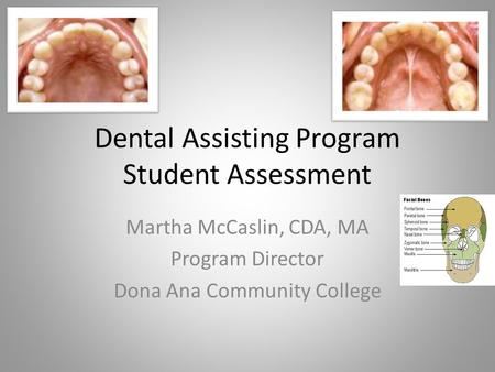Dental Assisting Program Student Assessment Martha McCaslin, CDA, MA Program Director Dona Ana Community College.