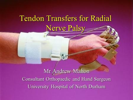 Tendon Transfers for Radial Nerve Palsy Mr Andrew Mahon Consultant Orthopaedic and Hand Surgeon University Hospital of North Durham.