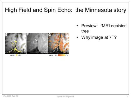 Psy 8960, Fall '06 Spin Echo, high field1 High Field and Spin Echo: the Minnesota story Preview: fMRI decision tree Why image at 7T?