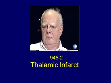 945-2 Thalamic Infarct. Neuroimaging Figure 1. Right medial thalamic infarct.