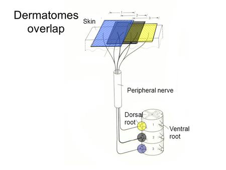 Dermatomes overlap Skin Peripheral nerve Dorsal root Ventral root.