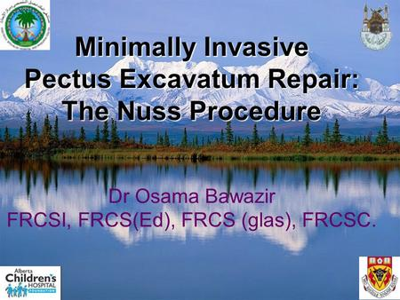 Minimally Invasive Pectus Excavatum Repair: The Nuss Procedure