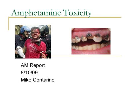 Amphetamine Toxicity AM Report 8/10/09 Mike Contarino.