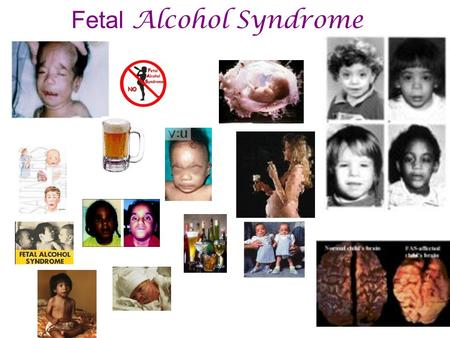 "Fetal Alcohol Syndrome. ""Copyright© Allyn & Bacon 2006"" Low birth weight Developmental delay Epilepsy Poor coordination / fine motor skills Behavioral."