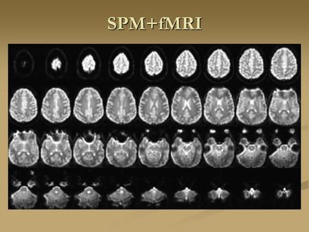 SPM+fMRI. K space K Space Mechanism of BOLD Functional MRI Brain activity Oxygen consumptionCerebral blood flow Oxyhemoglobin Deoxyhemoglobin Magnetic.