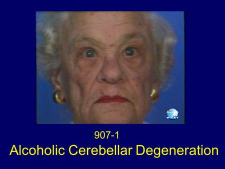 Alcoholic Cerebellar Degeneration 907-1. Clinical Syndrome The clinical syndrome of alcoholic cerebellar degeneration is remarkably stereotyped. The usual.
