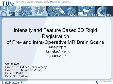 MSc project Janneke Ansems 21-08-2007 Intensity <strong>and</strong> Feature Based <strong>3D</strong> Rigid Registration of Pre- <strong>and</strong> Intra-Operative MR Brain Scans Committee: Prof. dr.