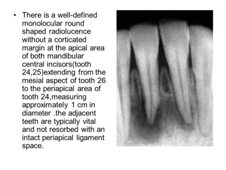 There is a well-defined monolocular round shaped radiolucence without a corticated margin at the apical area of both mandibular central incisors(tooth.