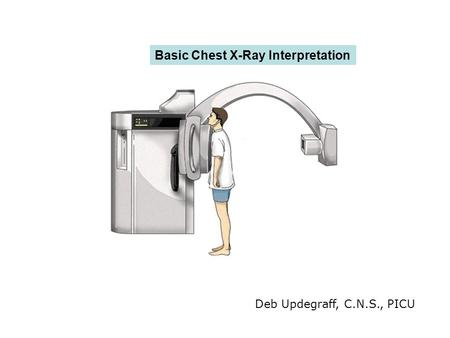 Basic Chest X-Ray Interpretation Deb Updegraff, C.N.S., PICU.