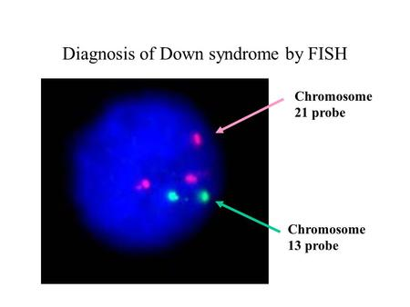 Diagnosis of Down syndrome by FISH Chromosome 13 probe Chromosome 21 probe.