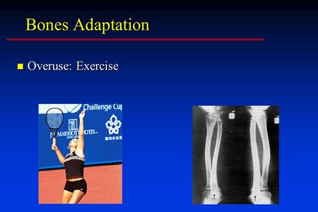 Bones Adaptation n Overuse: Exercise. Bone Adaptation n Disuse: bone mass is reduced.