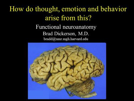 Functional neuroanatomy Brad Dickerson, M.D. How do thought, emotion and behavior arise from this?