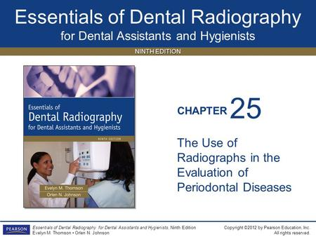 25 The Use of Radiographs in the Evaluation of Periodontal Diseases.
