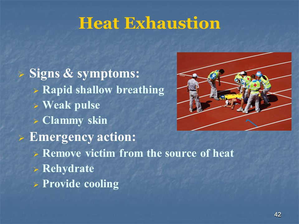 43 Heat Stroke Signs and symptoms include: Reduction or cessation of sweating Body temperature at or above 105ºF Rapid pulse
