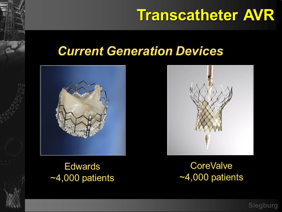 Siegburg Transcatheter AVR Clinical Data Sources PARTNER FDA* (US/OUS, TF/TA 456 pts) PARTNER FDA* (US/OUS, TF/TA 456 pts) PIVOTAL RCT * still enrolling patients CE-APPROVAL 18 Fr Transfemoral OUS Experience (1,243 pts)* PARTNER EU (OUS, TF/TA 125 pts) SOURCE (OUS, TF/TA, 598 pts)* PARTNER EU (OUS, TF/TA 125 pts) SOURCE (OUS, TF/TA, 598 pts)* FEASIBILITY 21 and 18 Fr Transfemoral OUS Experience (177 pts) REVIVE (OUS, TF, 106 pts) TRAVERCE (OUS, TA, 172 pts) REVIVAL (US, TF/TA, 95 pts) Transseptal Experience (RECAST, I-REVIVE; 36 pts) FIRST-in-MAN 25 Fr Transfemoral Experience (14 pts) Edwards CoreValve PARVIS In Planning with FDA PARVIS In Planning with FDA