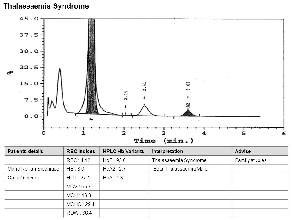Patients detailsRBC IndicesHPLC Hb VariantsInterpretationAdvise RBC :HbF : 22.0Sickle cell disease.Family studies Rushi RathodHB :HbA2 : 3.3(Homozygous HbS) Child / 2.5 yearsHCT :HbA : 2.5 MCV :HbS : 72.2 MCH : MCHC : RDW : Sickle cell disease