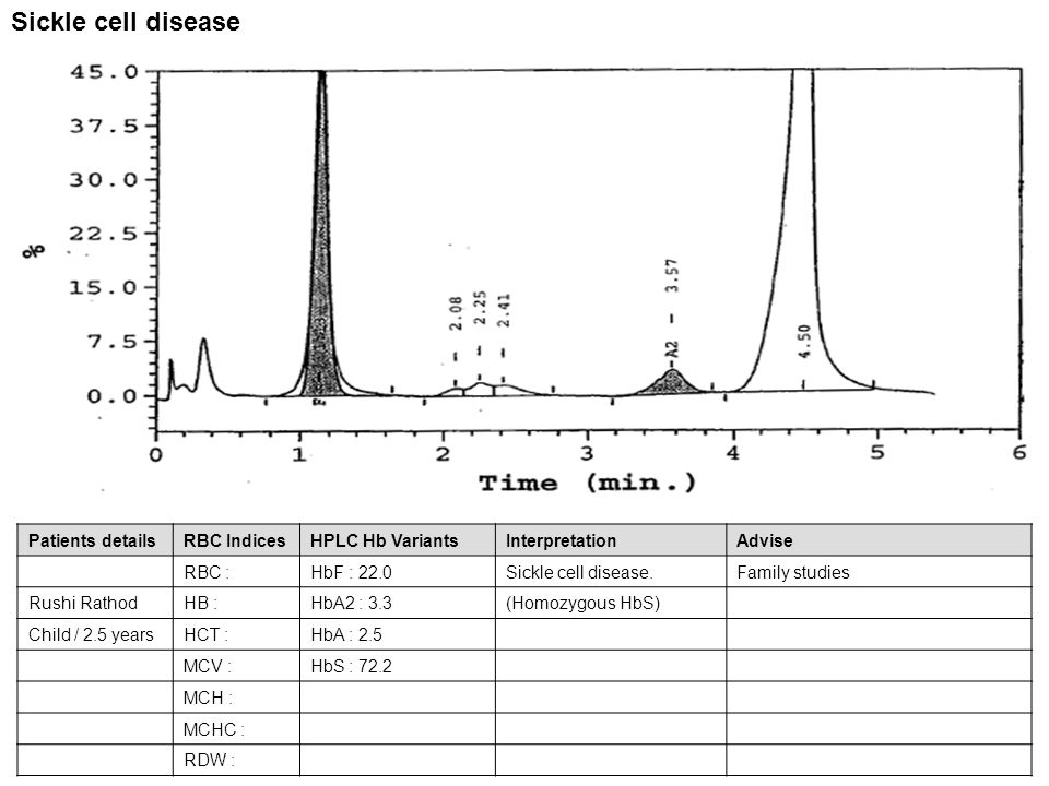Patients detailsRBC IndicesHPLC Hb VariantsInterpretationAdvise RBC : 5.30HbF : 0.8HbS TRAIT.- Jiji GeorgeHB : 14.8HbA2 : 3.1 Male/-HCT : 45.4HbA : 58.4 MCV : 85.6HbS : 37.7 MCH : 28.0 MCHC : 32.7 RDW : 16.1 HbS Trait