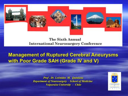 Management of Ruptured Cerebral Aneurysms with Poor Grade SAH (Grade IV and V) Prof. Dr. Leónidas M. Quintana Prof. Dr. Leónidas M. Quintana Department.
