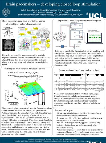 Brain pacemakers – developing closed loop stimulation Sobell Department of Motor Neuroscience and Movement Disorders, UCL Institute of Neurology, London,
