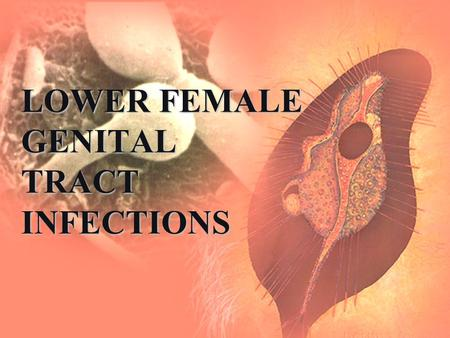 LOWER FEMALE GENITAL TRACT INFECTIONS. Defence Mechanism Against Ascent of Infection (Natural Barrier) Vulva: Vulva:  Apocrine glands: modified sweat.