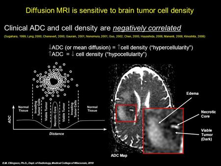 Diffusion MRI is sensitive to brain tumor cell density Clinical ADC and cell density are negatively correlated (Sugahara, 1999; Lyng, 2000; Chenevert,