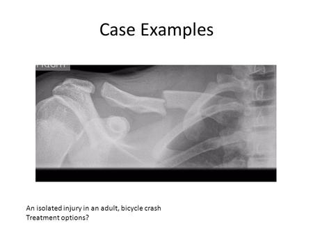 Case Examples An isolated injury in an adult, bicycle crash Treatment options?