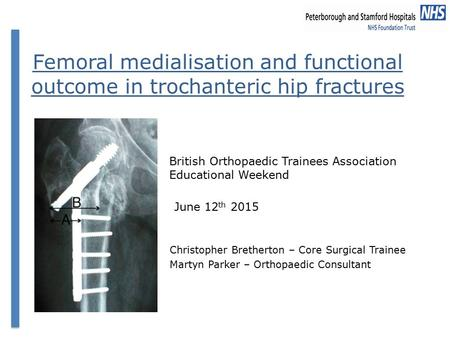Femoral medialisation and functional outcome in trochanteric hip fractures Christopher Bretherton – Core Surgical Trainee Martyn Parker – Orthopaedic Consultant.