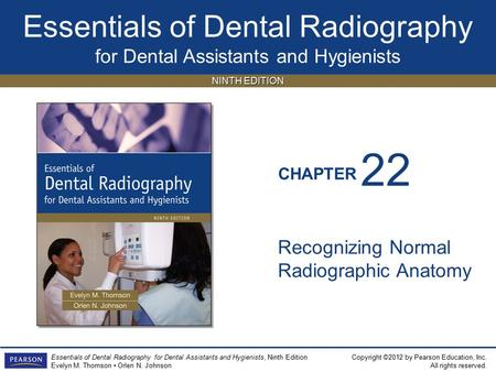 22 Recognizing Normal Radiographic Anatomy.