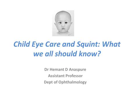 Child Eye Care and Squint: What we all should know?