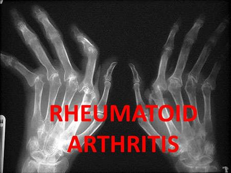 RHEUMATOID ARTHRITIS. Chronic multisystem disease of unknown cause Characteristic features: Persistent inflammatory synovitis Involves peripheral joints.