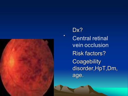 . Dx? Central retinal vein occlusion Risk factors? Coagebility disorder,HpT,Dm, age.