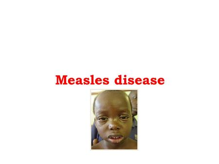Measles disease. - An acute disease Caused by measles virus Highly infectious: everyone exposed gets the disease if not immune - Transmission Contact.