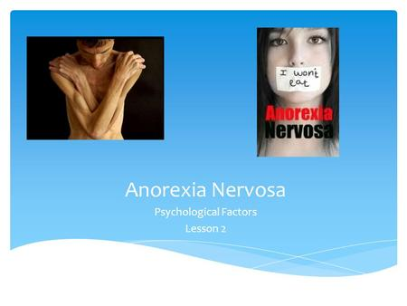 Anorexia Nervosa Psychological Factors Lesson 2.  Understand 3 treatments that are used for anorexia through presentations  Know the psychological factors.