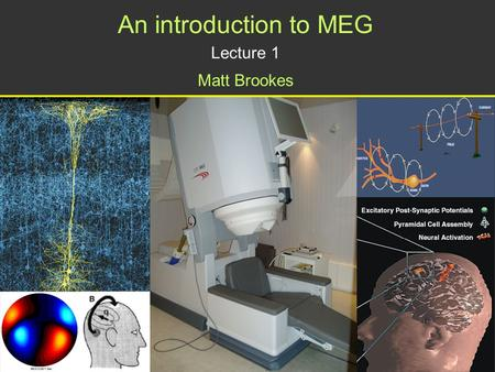An introduction to MEG Lecture 1 Matt Brookes. What is Magnetoencephalography? Cellular currents produce magnetic fields Aim of MEG: To detect these magnetic.