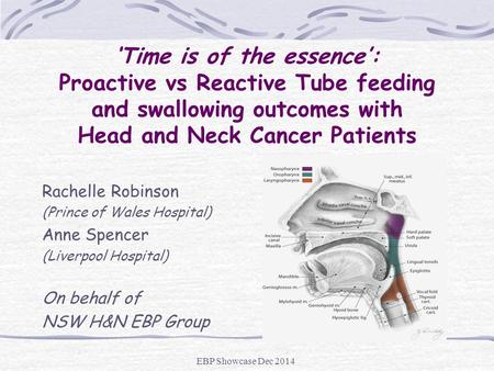 'Time is of the essence': Proactive vs Reactive Tube feeding and swallowing outcomes with Head and Neck Cancer Patients Rachelle Robinson (Prince of Wales.