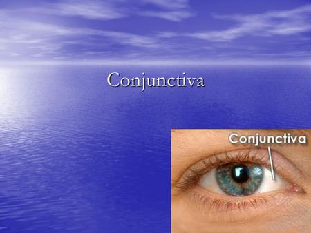 Conjunctiva. Conjunctiva It is a mucous membrane covering the inner surface of the eyelids and reflecting to cover the anterior part of the eyeball over.